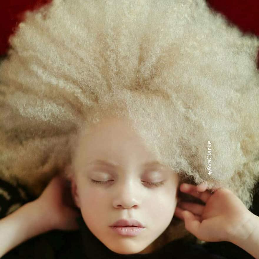 Красивый альбинос