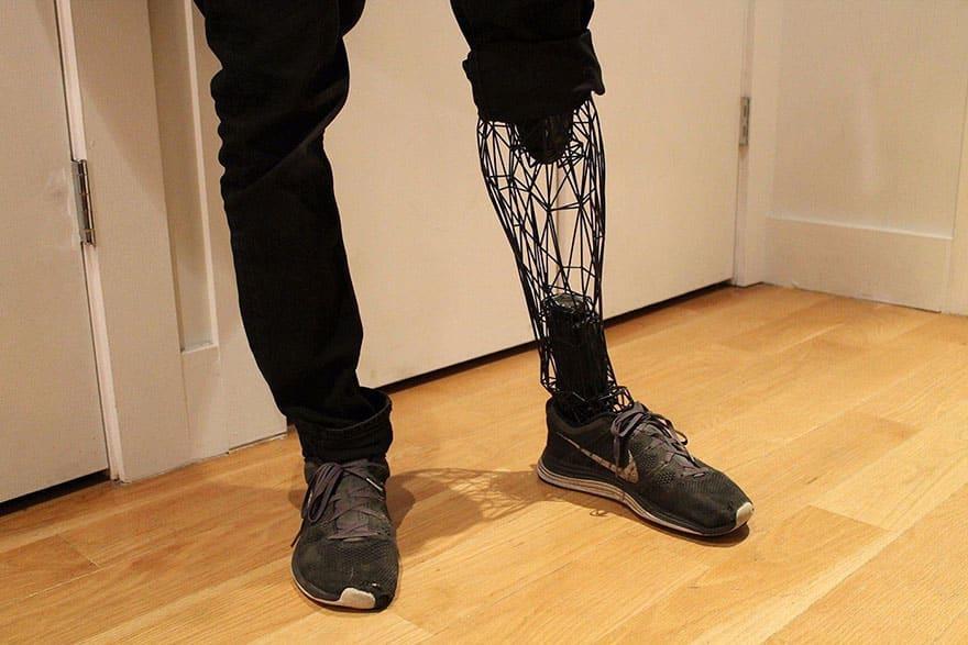 Протезы для инвалидов из титана