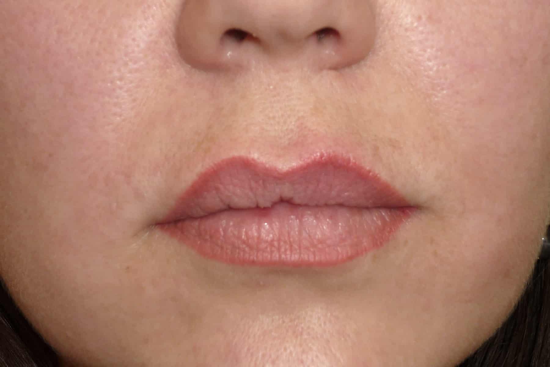 резкая складка на губе