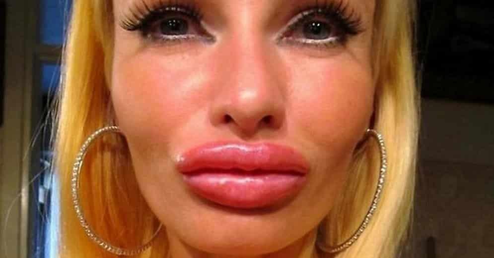 Самые перекаченные губы фото
