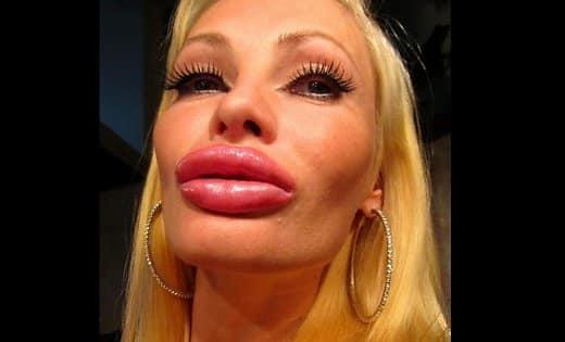 Половые губы